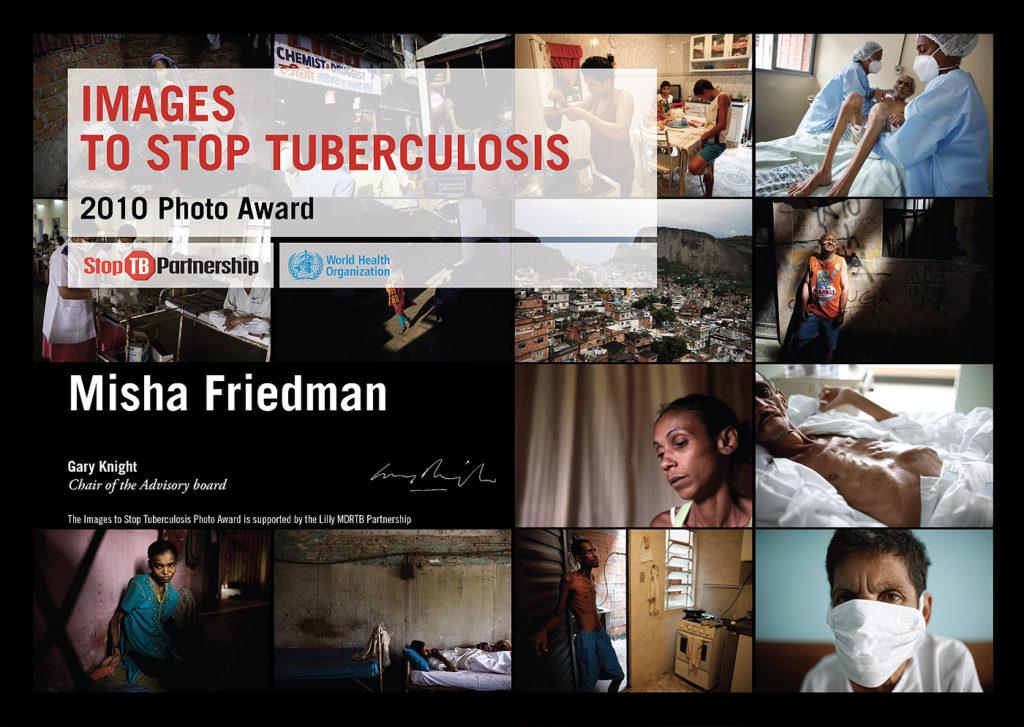 Contest fotografico – images to stop tuberculosis, attestato